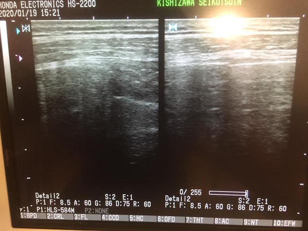 肋骨骨折の初診時エコー画像