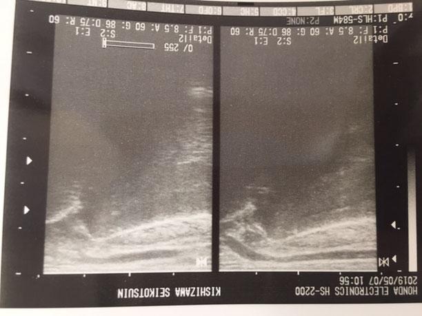 橈骨遠位端骨折のエコー画像