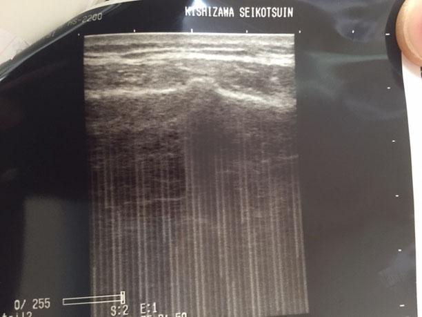 受傷から一か月経過した肋骨骨折のエコー画像