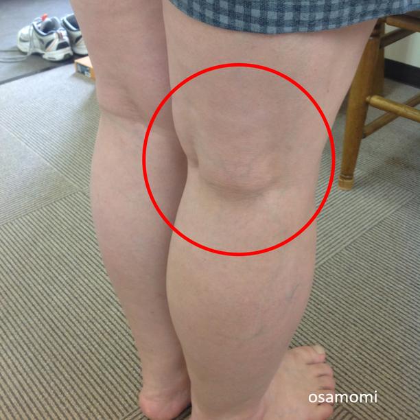 オサモミ整体院 ひざ痛 ベーカー嚢腫