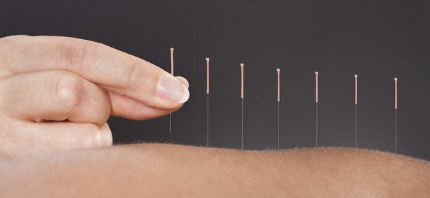 acupuncture lyon natacha badrov