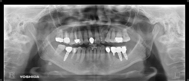 インプラント周囲炎で骨がなくなった場合の再インプラント治療例