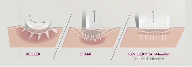 Needling-Verfahren: Roller, Stamp, SkinNeedler