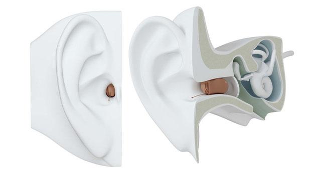Hörgerät im Ohr CIC Sitz Ohr Gehörgang
