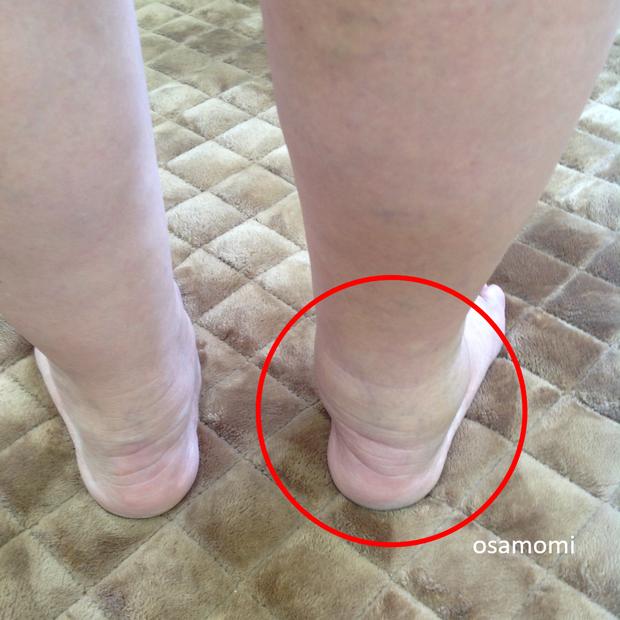 オサモミ整体院 かかと異常 足首痛