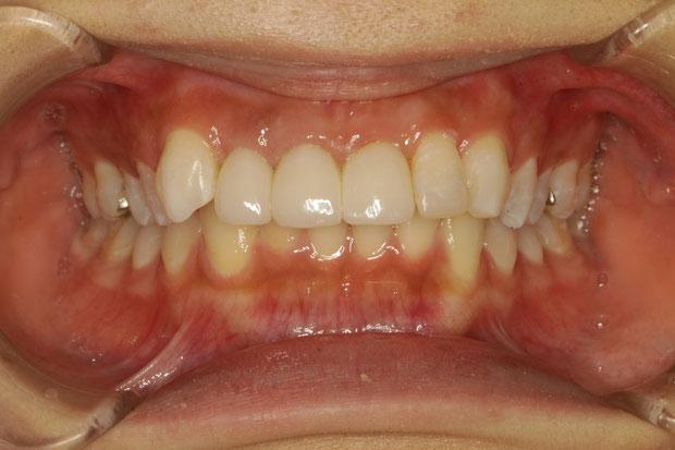 歯の長さがちょうどいい所まで歯茎の整形を行いました.