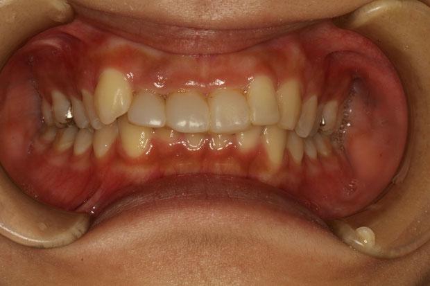 審美歯科治療をする場合、歯茎の整形が必要なケース