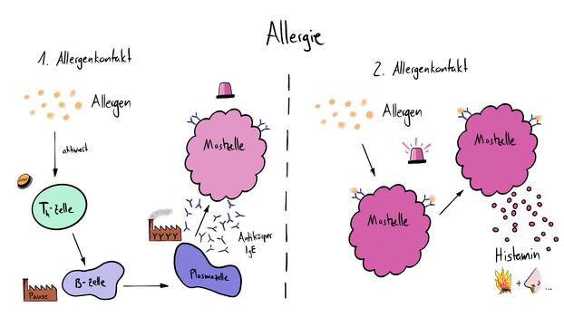 Tafelbild das den Ablauf einer allergischen Rekation des Immunsystems im Körper visualisiert.