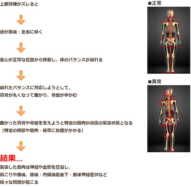 正常な体全体のの骨格と、ゆがんだ骨格を比較したイラスト画像