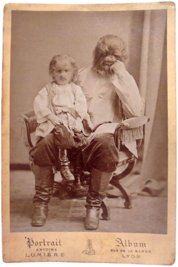 父エイドリアンと子ども時代のヒョードル