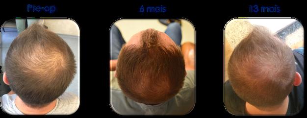 patient avec mésogreffe Rigenera pour calvitie suivi à 13 mois