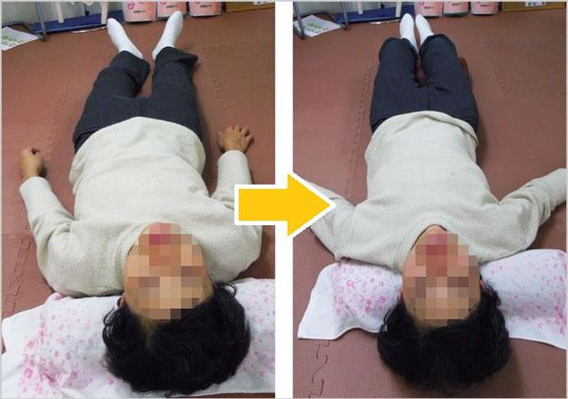 腰痛治療ビフォーアフター