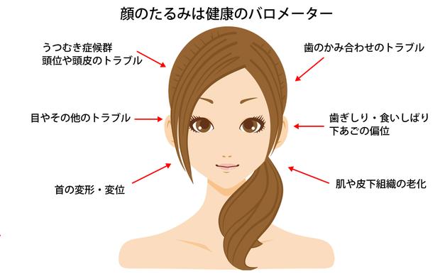 顔のたるみは健康のバロメーター 顔面左右非対称性症候群が引き起こすトラブル