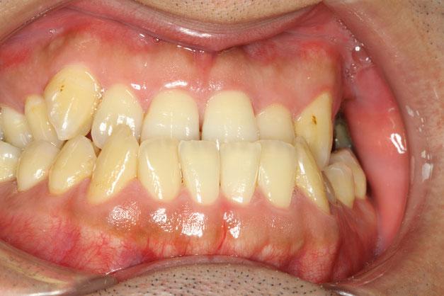 歯の噛み合わせ