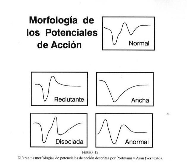 Diferentes morfologías de los potenciales de acción descritas por Portmann y Aran.