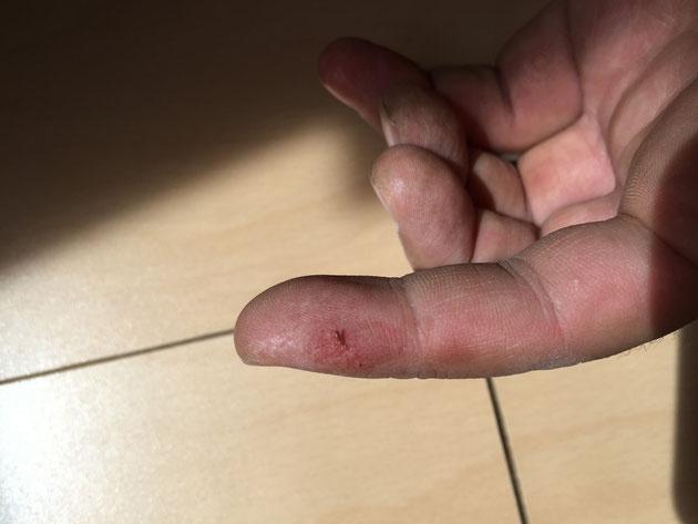 軍手していても怪我をしていた指