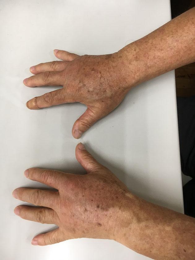 両手の甲が腫れてパンパンに膨れ上がってしまいました