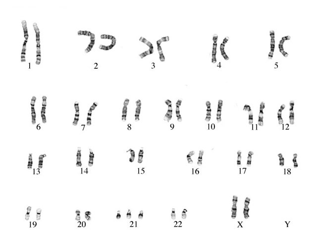 Caryotype d'une personne atteinte du syndrome de Down. Source: wikipedia