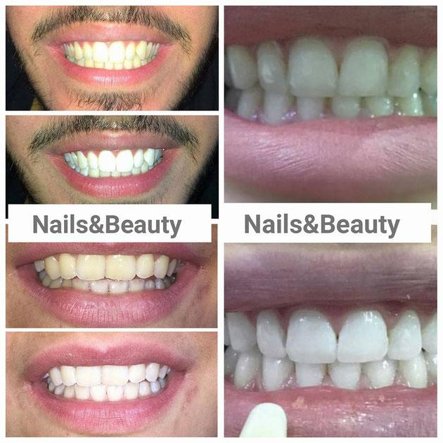 Zahnschmuck nach Bleaching wird von immer mehr Kundin nachgefragt. Wenn Sie Ihren Zähnen einen ganz besonderen Glanz verleihen möchten, ist vielleicht Zahnschmuck das Richtige für Sie.