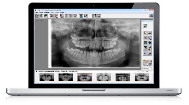 Anteray – DIXI32 – Röntgen- und Bildverarbeitungs-Software