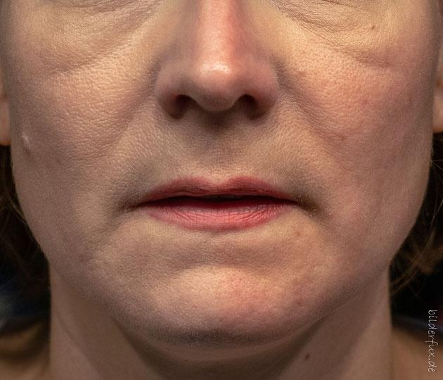 Die linke Bildhälfte mit der MÀDARA CC Cream, die rechte Bildhälfte ohne.