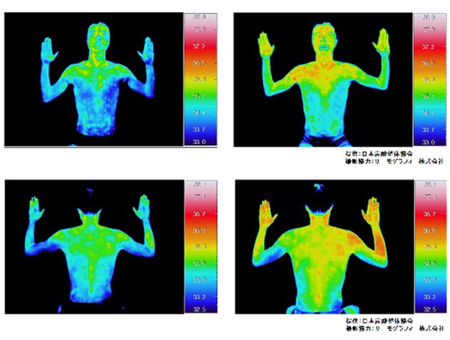 炭酸による整体で体温上昇、冷え性、むくみ、こむら返り解消