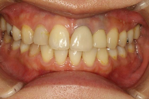 前歯の古い差し歯