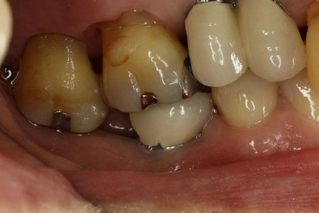 インプラントと歯周病