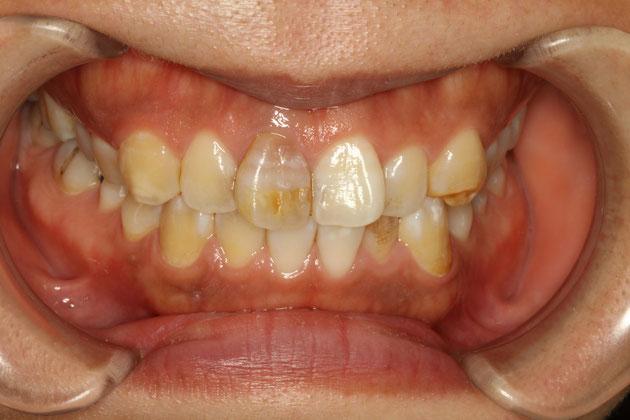 変色した歯の治療