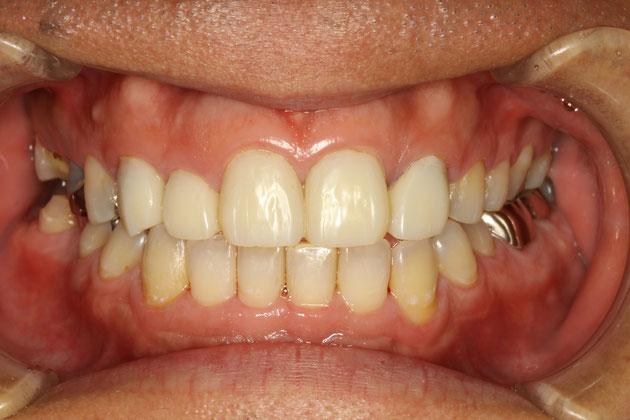 仮歯の調整中