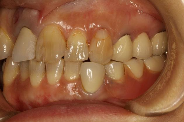 目立たない入れ歯 審美歯科