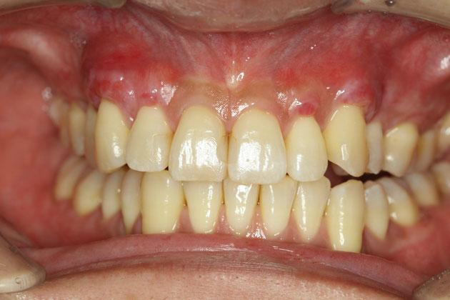 歯茎の再生2週間後の状態