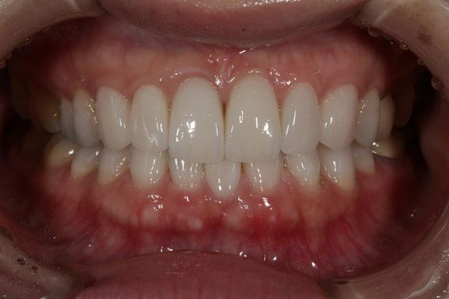 歯茎の整形とオールセラミック