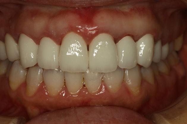 歯茎の再生治療前