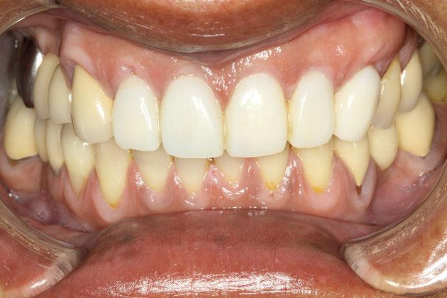 治療後 仮歯