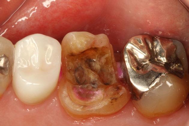 虫歯の確認