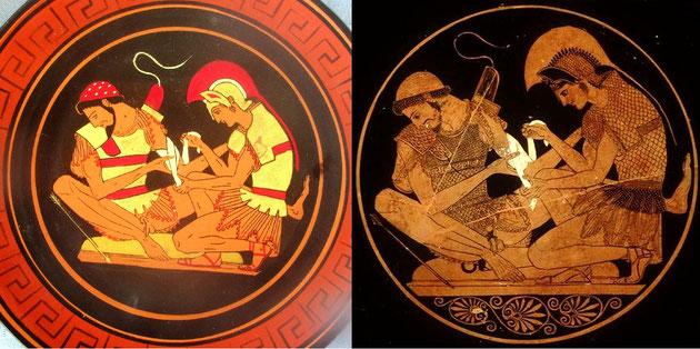 Aquiles ejerciendo ilegalmente la medicina: a la izquierda, en nuestro precioso plato, y a derecha, en la burda imitación de un tal Socias