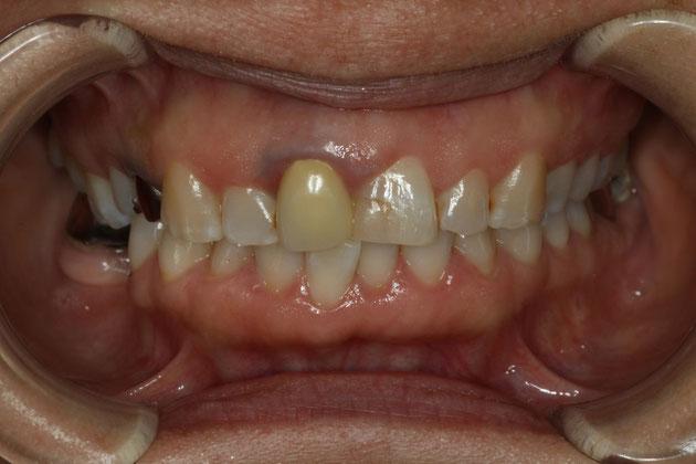 歯茎に金属片が入っている場合