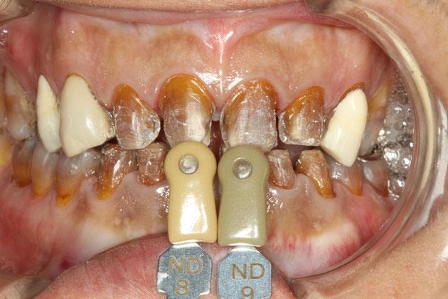 テトラサイクリン変色歯