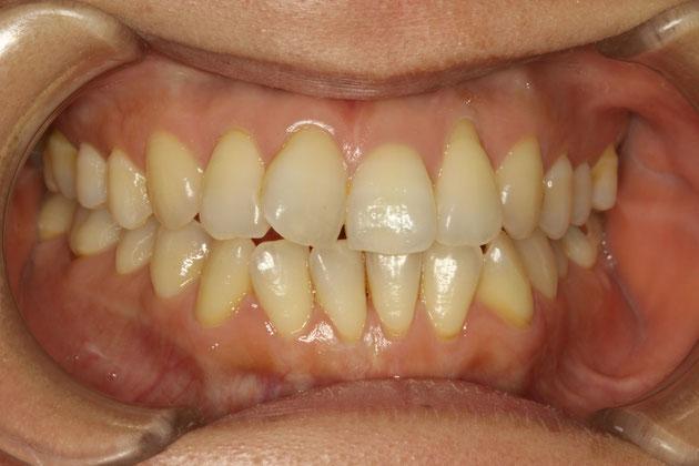 歯茎の下がった方