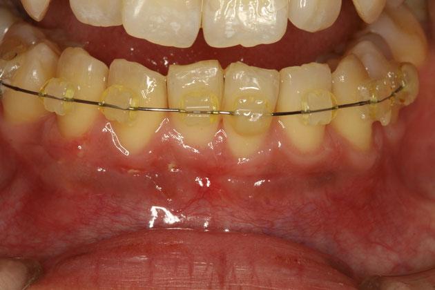 歯並び治療 矯正中