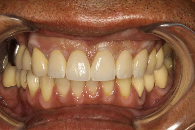 歯茎の再生と歯の形の変更ケース