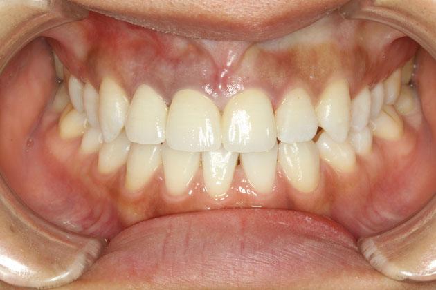 変色歯の審美歯科治療