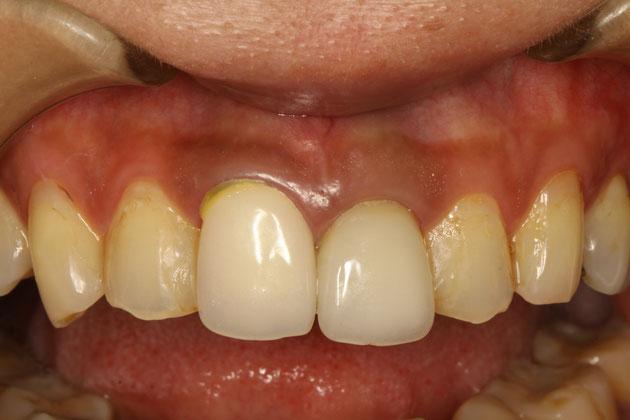 片方の差し歯が長くて、左右の差し歯の長さがちがうケース 治療前