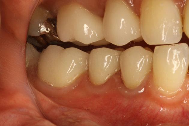 奥歯のオールセラミッククラウン