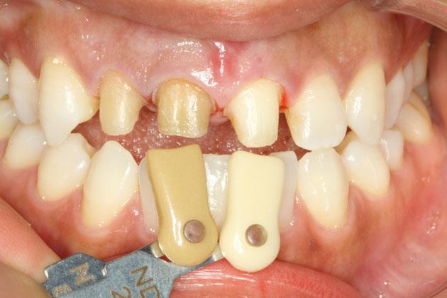 神経の無い歯の変色