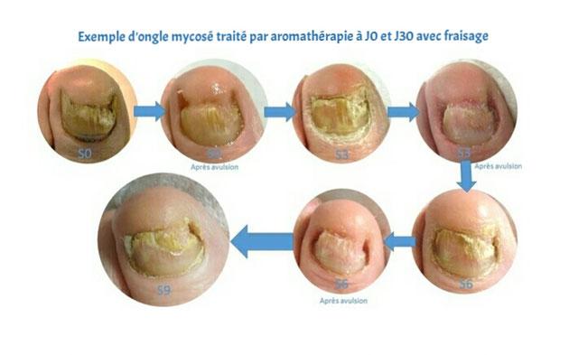 Exemple d'ongle mycosé traité par aromathérapie à J0 et J30 avec fraisage