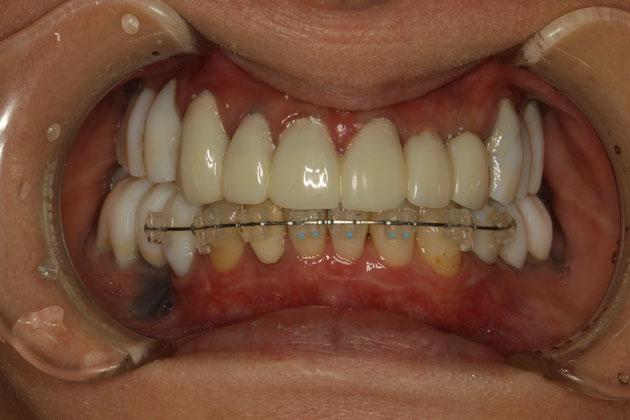仮歯の長さが長くなってし待った時の審美歯科治療