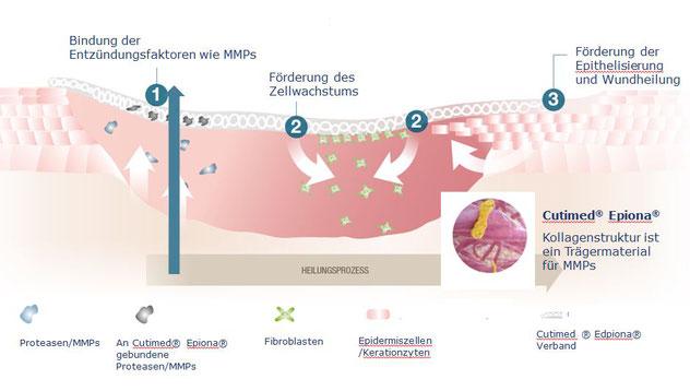 Die drei Schritte zur Wundheilung graphisch dargestellt