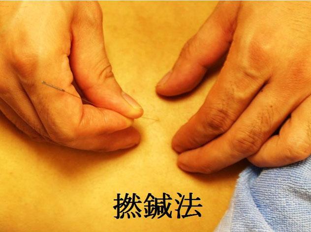 あじさい鍼灸マッサージ治療院 捻鍼法